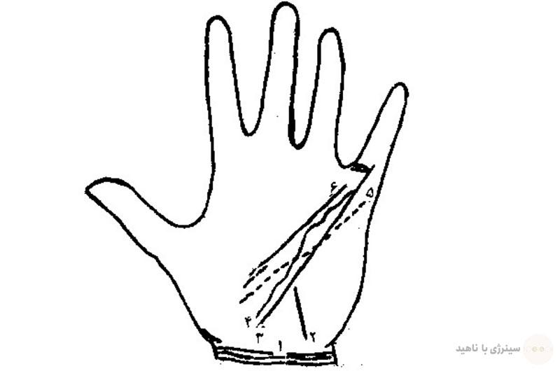 خط مچ دست